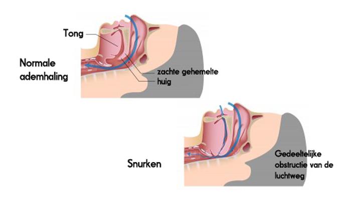 Anti snurkbeugel tegen snurken