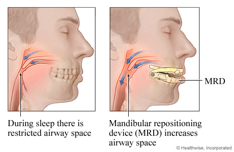Wat helpt tegen snurken - MRA