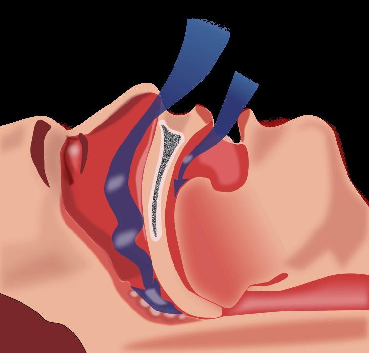 Anti snurk bitje tegen snurken